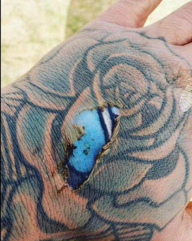 fresh tattoo revealed after burn